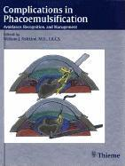 Complications in Phacoemulsification: Avoidance, Recognition, and Management EB9781604060676