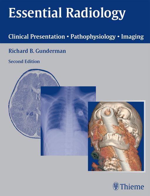 Essential Radiology: Clinical Presentation ? Pathophysiology ? Imaging EB9781604061192