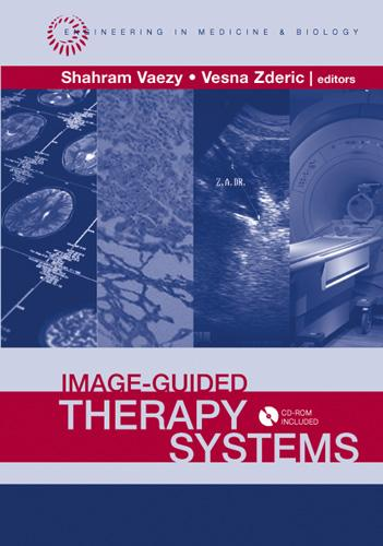 Image-Guided Therapy Systems EB9781596931107