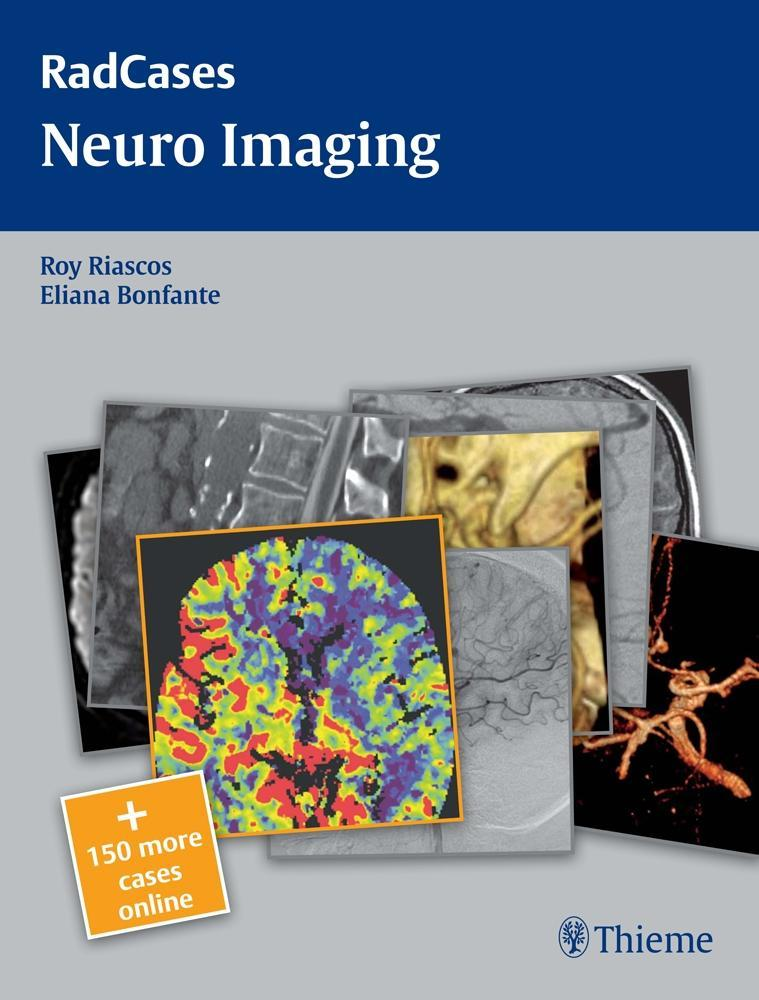 Neuro Imaging EB9781604061901