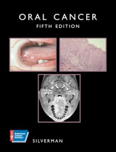 Oral Cancer EB9781607950745