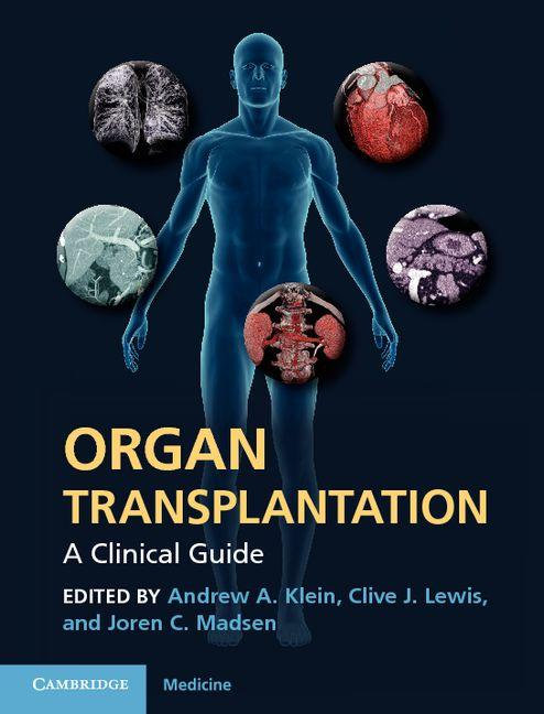 Organ Transplantation EB9781139098076
