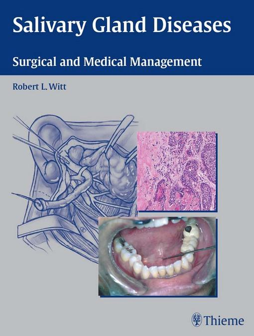 Salivary Gland Diseases: Surgical and Medical Management EB9781604065374
