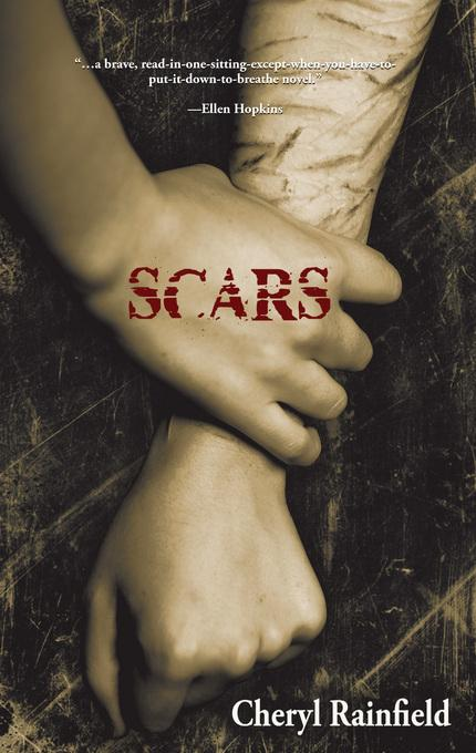 Scars EB9781934813966