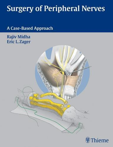 Surgery of Peripheral Nerves: A Case-Based Approach EB9781604060034