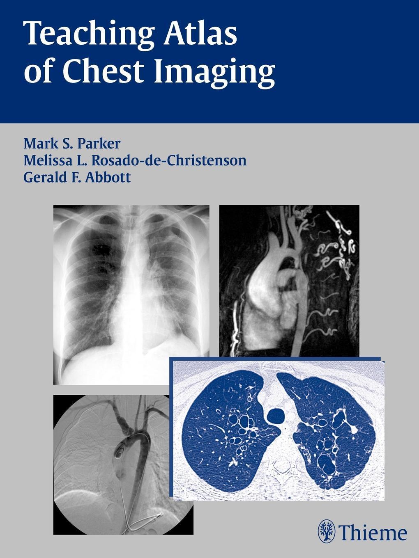 Teaching Atlas of Chest Imaging EB9781604066227