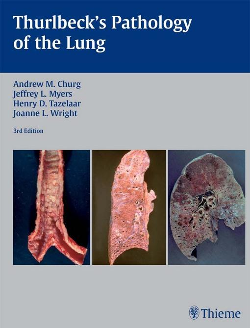 Thurlbeck's Pathology of the Lung EB9781604064971
