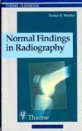 Normal Findings in Radiography EB9783131646712