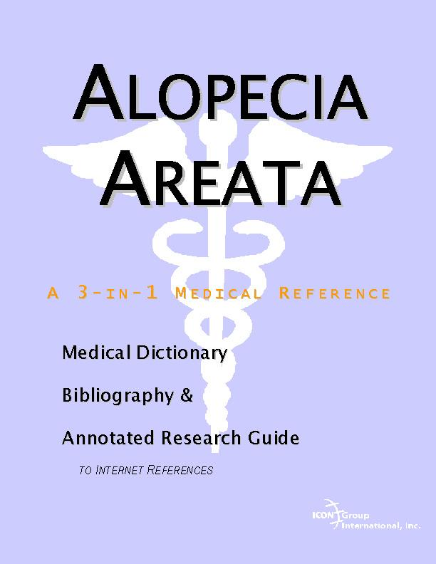 Alopecia Areata - A Medical Dictionary, Bibliography, and Annotated Research Guide to Internet References