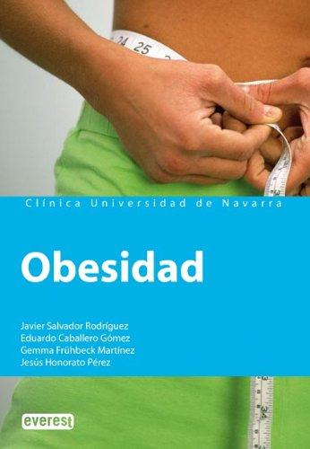 Obesidad 9788424184124