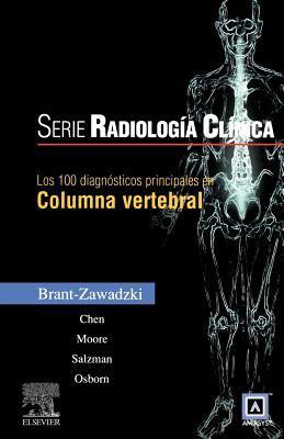 Los 100 Diagnosticos Principales En Columna Vertebral 9788480869478