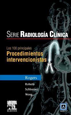 Serie Pocket de Radiologia: Los 100 Diagnosticos Principales En Procedimientos Intervencionistas 9788481747546