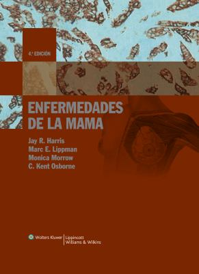 Enfermedades de la Mama = Diseases of the Breast 9788496921627