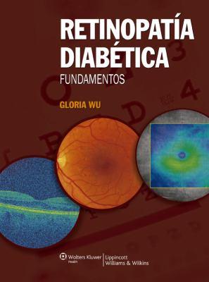 Retinopatia Diabetica.Fundamentos 9788496921863