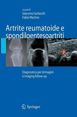 Artrite Reumatoide E Spondiloentesoartriti: Diagnostica Per Immagini Ed Imaging Follow-Up 9788847006850