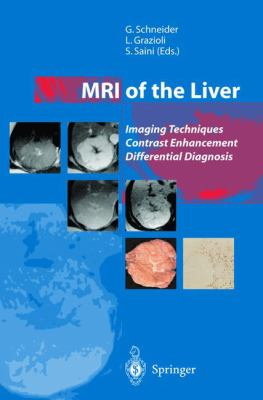 MRI of the Liver: Imaging Techniques, Contrast Enhancement, Differential Diagnosis 9788847002098