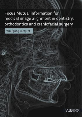 Focus Mutual Information for Medical Image Alignment in Dentistry, Orthodontics and Craniofacial Surgery 9789054876441