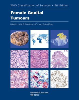 DEFAULT_SET: Female Genital Tumours: WHO Classification of Tumours (Medicine)