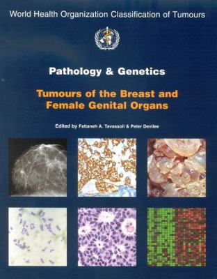 Pathology and Genetics of Tumours of the Breast and Female Genital Organs 9789283224129