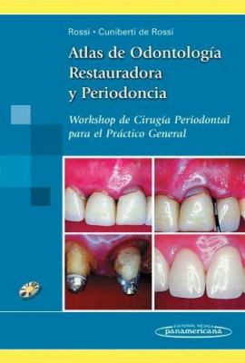 Atlas de Odontologia Restauradora y Periodoncia: Workshop de Cirugia Periodontal Para el Practico General [With CDROM] 9789500618700