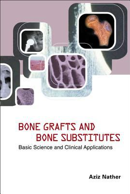 Bone Grafts and Bone Substitutes: Basic Science and Clinical Applications 9789812560896