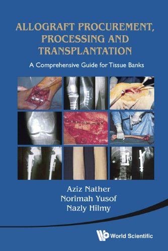 Allograft Procurement, Processing and Transplantation: A Comprehensive Guide for Tissue Banks 9789814291187